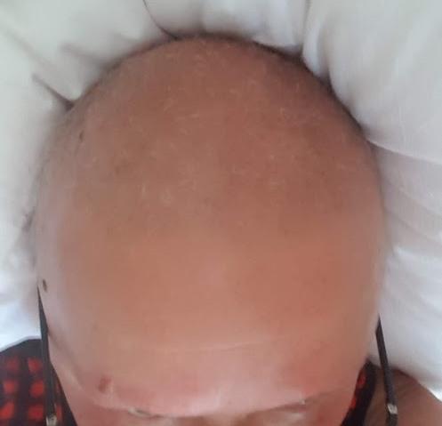 волосы во время лучей