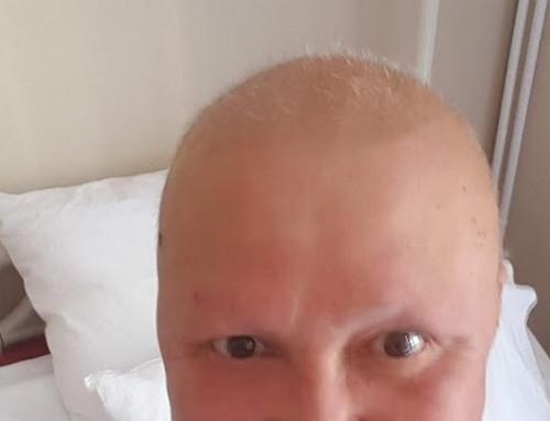 волосы через месяц после последней химии