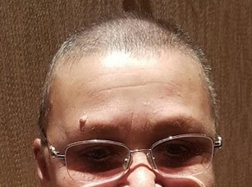 волосы через 10 дней после 1 химии