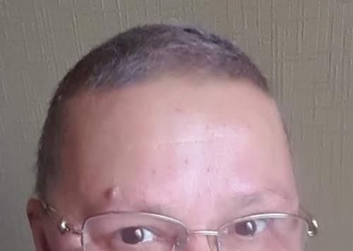 ровно через 3 месяца после химий волосы начали расти