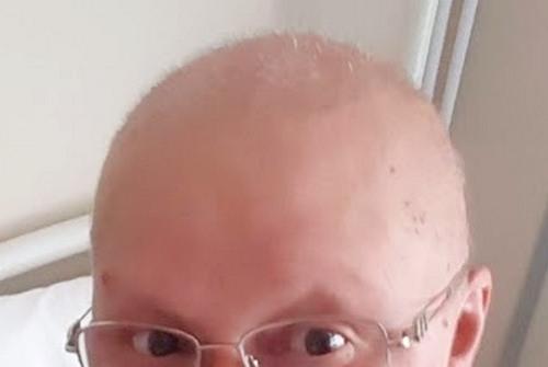 волосы через 2 недели после последней химии